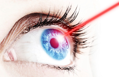 laser eye surgery claims