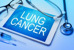 asbestos lung cancer claim